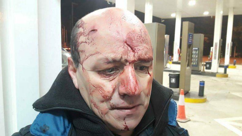 Los delincuentes que golpearon al Policía retirado irán cuatro años presos