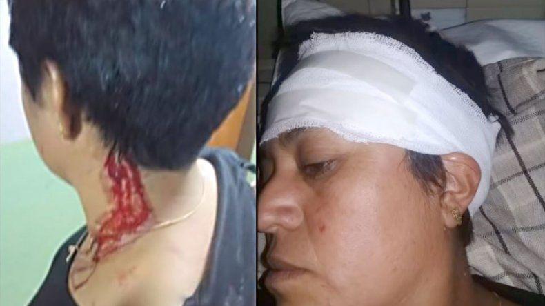 Su ex pareja la atacó a ladrillazos y piñas en la calle