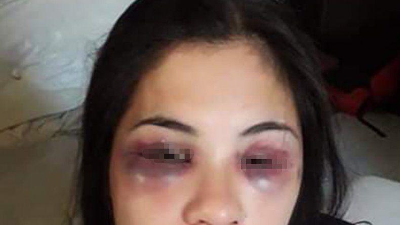 Tras los festejos por Año Nuevo, le desfiguró la cara a su novia y la cortó con un vidrio