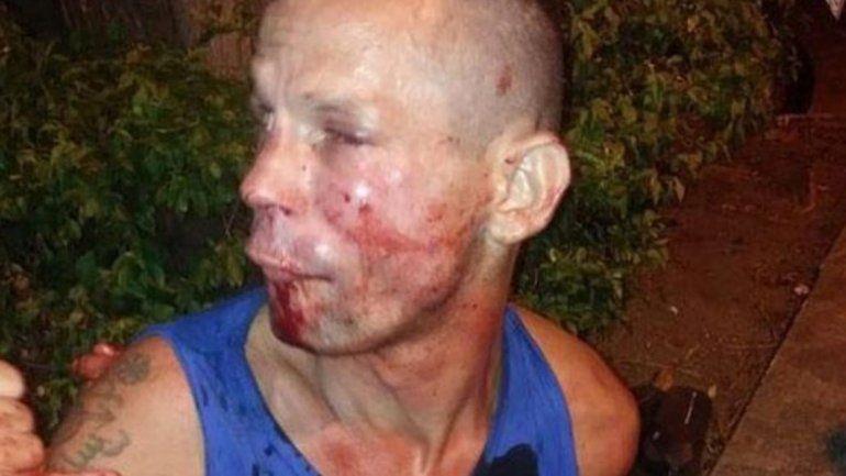 Quiso robarle el celular a una luchadora de UFC y casi termina en el hospital