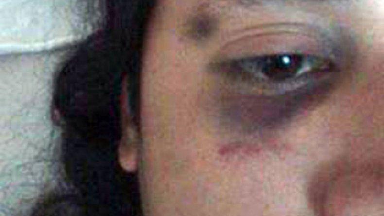 Investigan a policías por presunta golpiza a un joven mapuche