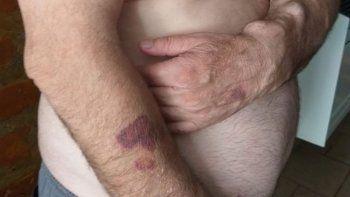 violento asalto a un vecino en el basurero de plottier