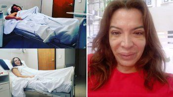 lizy tagliani mostro su nueva cara tras la cirugia