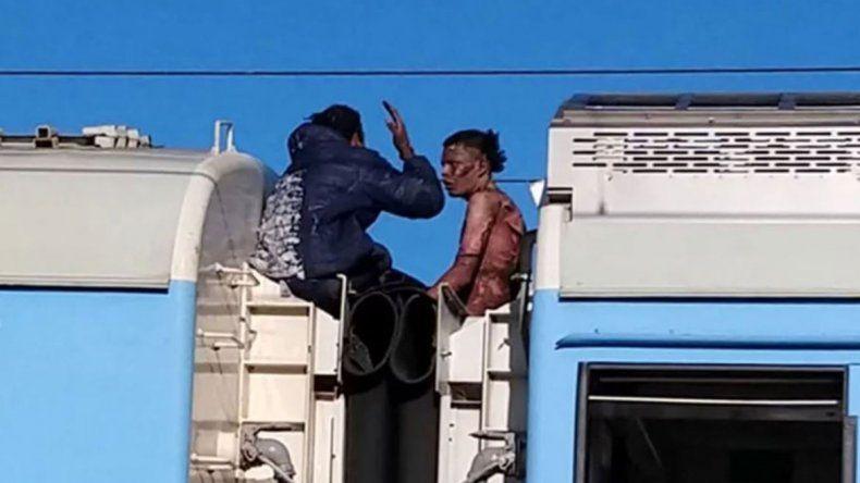 Murió uno de los jóvenes que recibieron una descarga eléctrica cuando viajaban en el techo de un tren