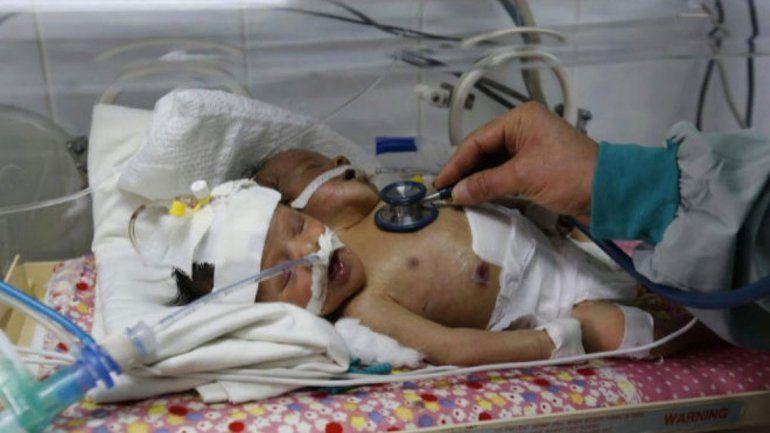 Por falta de atención médica, fallecieron los bebés siameses
