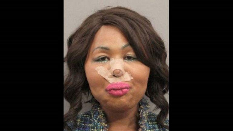 Una mujer trans robaba bancos para operarse la cara