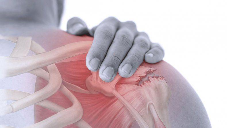 Cómo se trata la lesión del manguito rotador