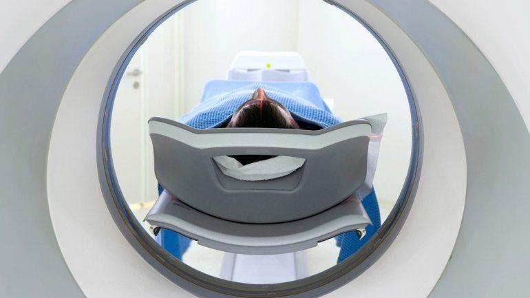 Detectan antes un cáncer con inteligencia artificial