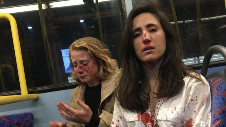 Brutal golpiza en un micro a una azafata uruguaya y a su novia