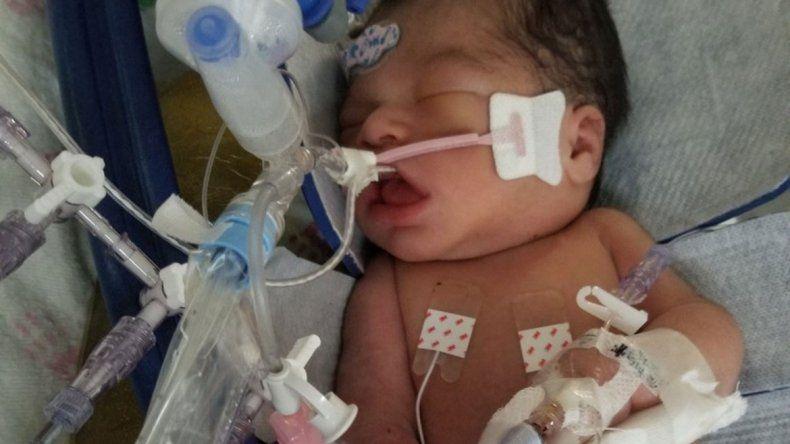 Murió el bebé al que quitaron del vientre materno