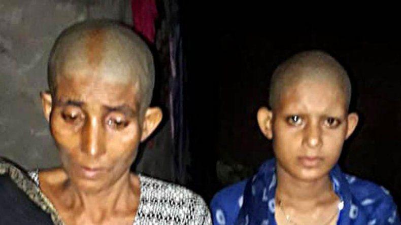 India: las raparon porque no se dejaron violar
