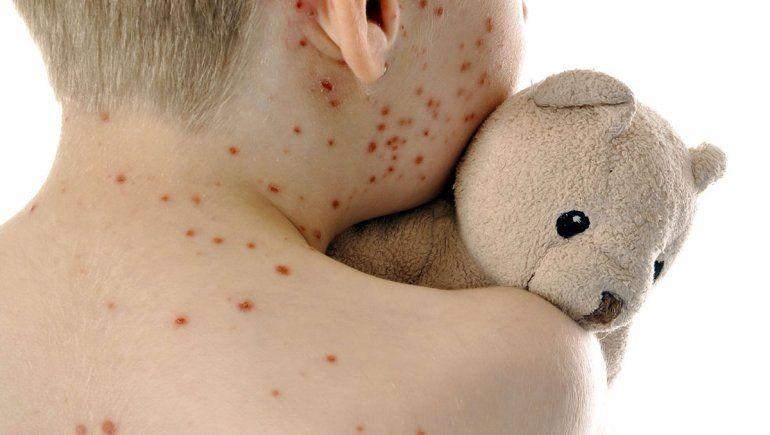 Por los antivacunas, se triplicaron los casos de sarampión en todo el mundo