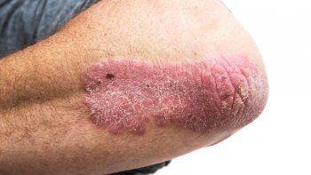 psoriasis: deteccion temprana y controles gratuitos en neuquen