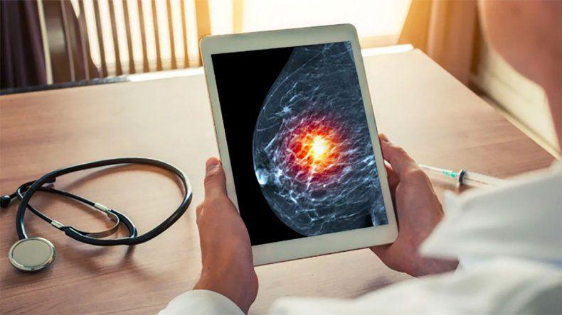 Una nueva terapia para un tipo de cáncer de mama