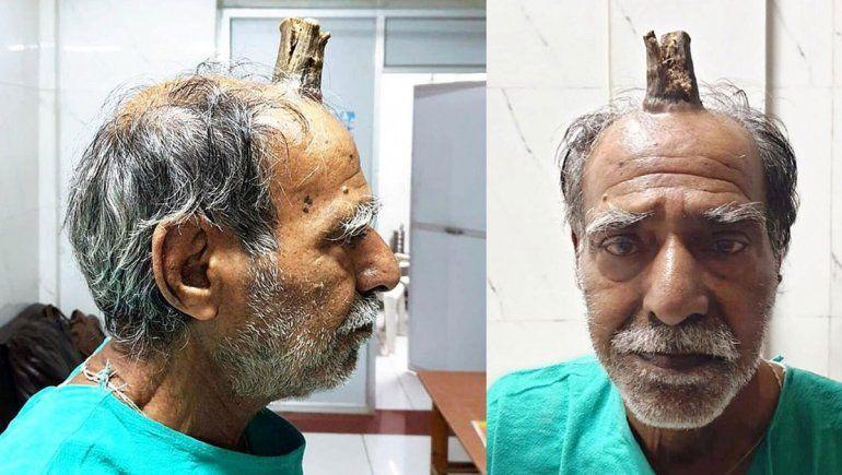 India: a un granjero le extirparon el cuerno del diablo