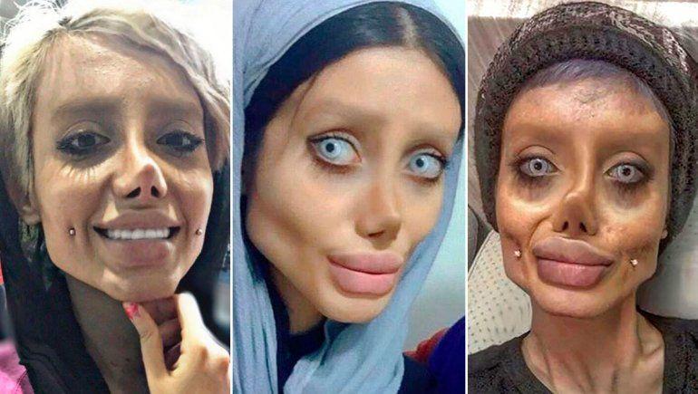 Detienen a la iraní que se operó a lo Angelina Jolie