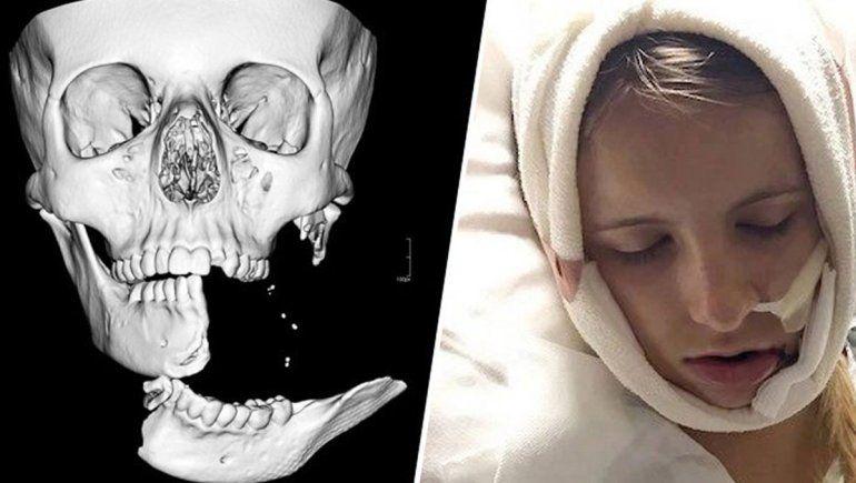 Su mandíbula quedó colgando de un hilo de piel tras caerse de su caballo