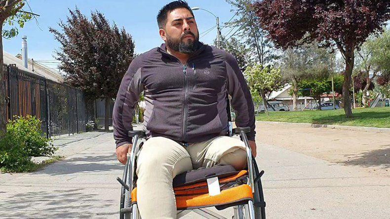 Chile: fue por un esguince de tobillo y lo amputaron