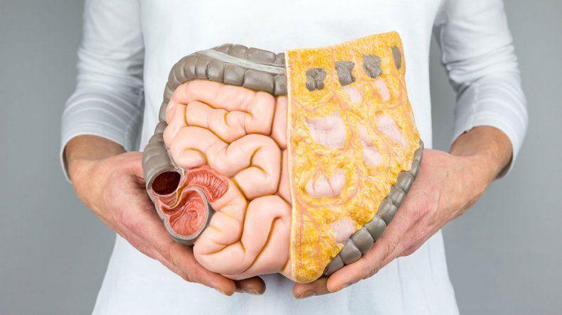 Cáncer de colon, el 2º más frecuente y mortal