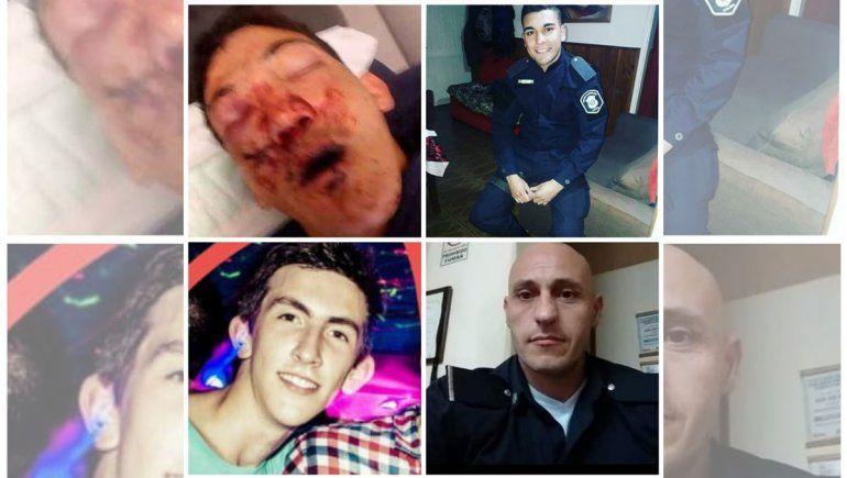 Expulsaron a dos policías por desfigurar a un joven en Tandil