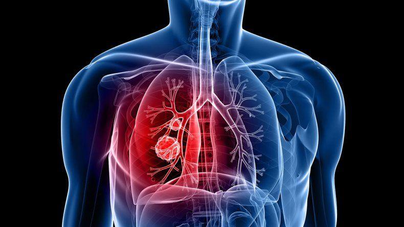 Importante avance para quienes sufren cáncer de pulmón