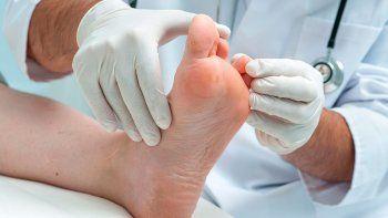 un dia para tomar conciencia: de que trata el pie diabetico