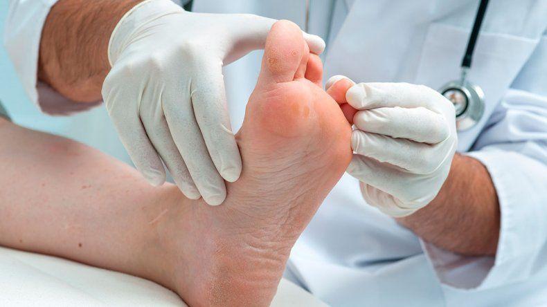 Un día para tomar conciencia: de qué trata el pie diabético