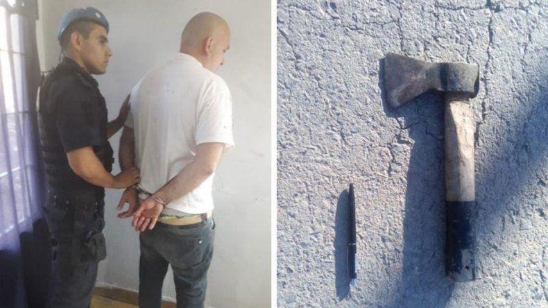 Hombre atacó a su ex pareja con un hacha y le cortó una oreja