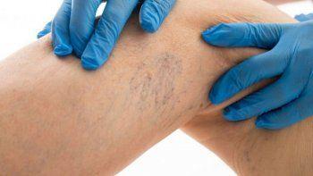 cuidado: la enfermedad detras de las varices y las aranitas