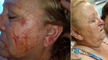 video: motochorro le piso la cabeza para robarle el bolso