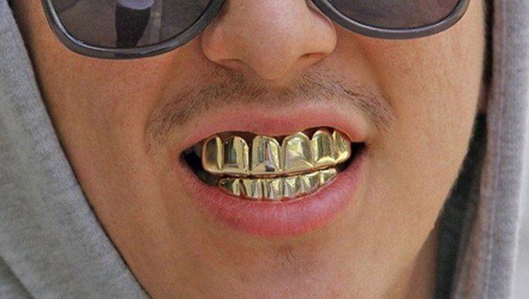 Grills, la nueva y peligrosa moda de decorarse los dientes