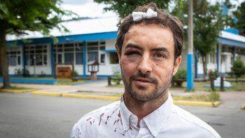 un abogado recibio brutal ataque en pleno centro de san martin