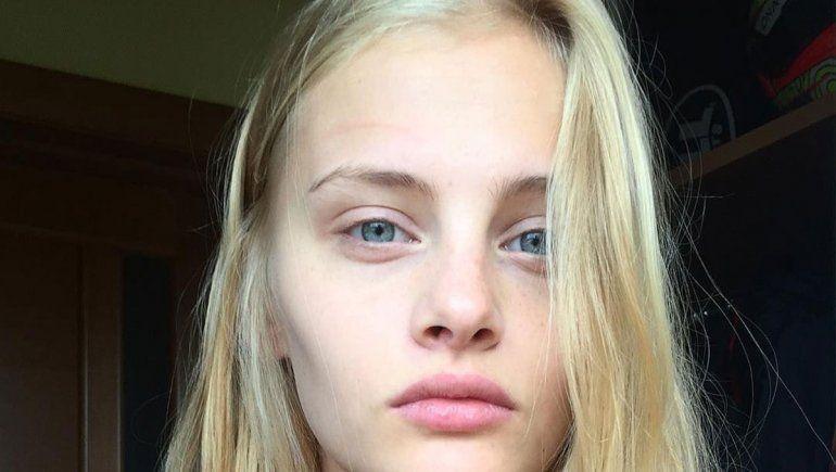 Una top model rusa cayó de un 3° piso y está grave