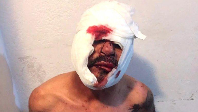 Abusaba de un nene de tres años y vecinos lo molieron a golpes