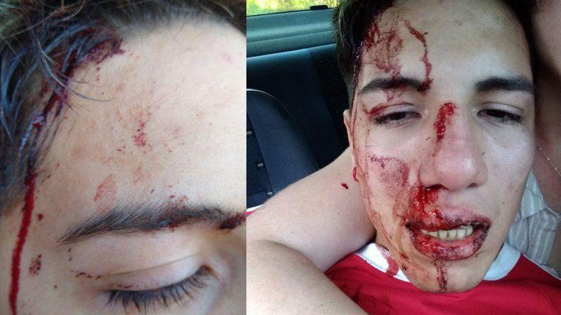 Denuncian que un taxista le dio un piedrazo en la cara