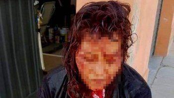 dramatico relato de la mujer que asistio a la turista violada en puerto deseado
