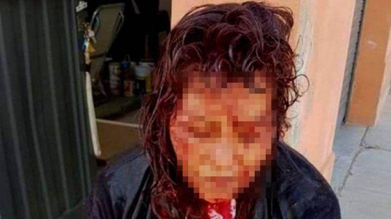 Dramático relato de la mujer que asistió a la turista violada en Puerto Deseado