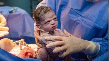 la historia de la bebe que nacio con cara de muy enojada
