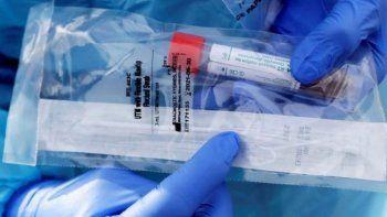 llegaron reactivos para hacer los test del coronavirus