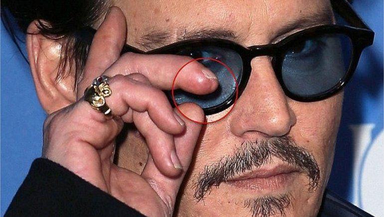 Johnny Depp perdió parte de un dedo al pelear con su ex