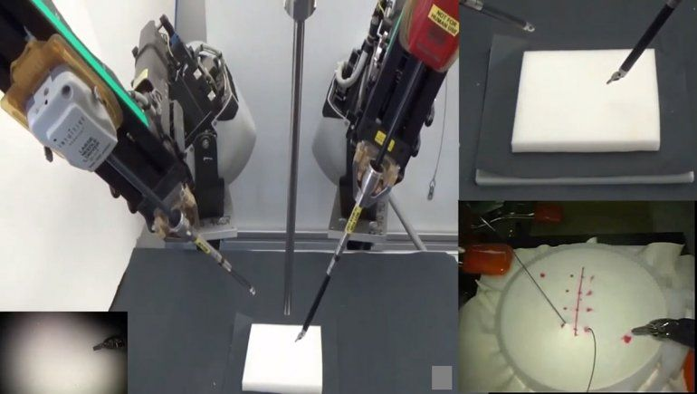 Entrenan a un robot para que suture heridas