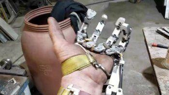tras la amputacion de cuatro dedos construye una asombrosa protesis ¡video!