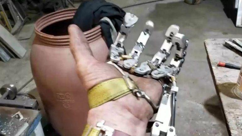 Le amputan cuatro dedos y construyó su propia prótesis