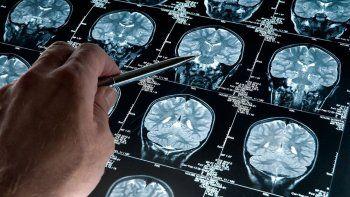 hallan un gen que evita signos del alzheimer en celulas cerebrales
