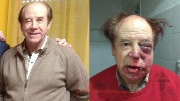 Al dueño de una inmobiliaria lo desfiguraron a golpes en un robo