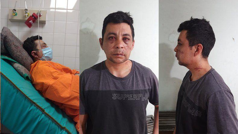 Indignante: enfermero se recuperó del coronavirus y los vecinos lo golpearon, le prendieron fuego la casa y le robaron el auto