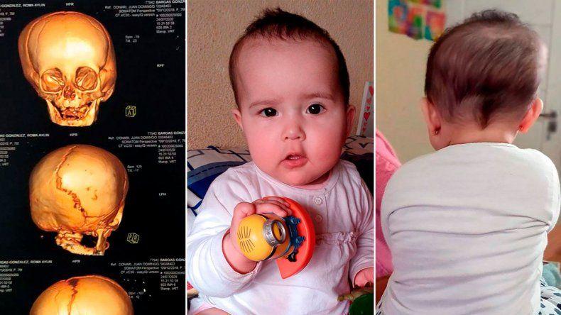Llamado a la solidaridad por una beba de 8 meses
