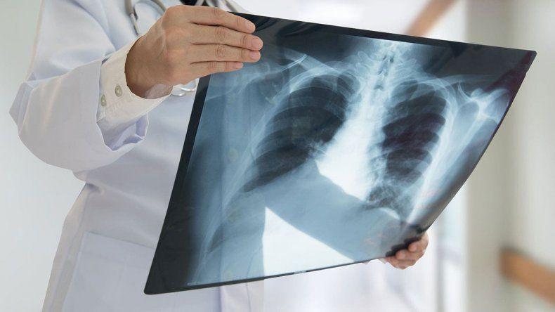 COVID: uno de cada 100 pacientes sufre perforación de pulmón