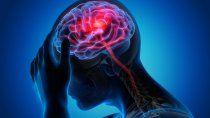 covid-19: el acv puede ser el primer sintoma