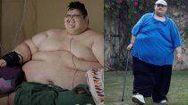el hombre mas gordo del mundo vencio al coronavirus